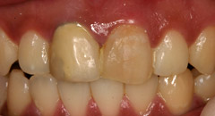 CrownsVeneers1