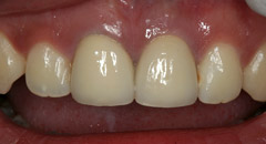 CrownsVeneers2