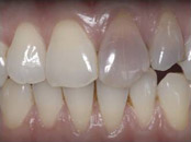 CrownsVeneers5