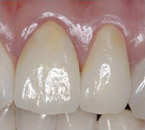 CrownsVeneers6