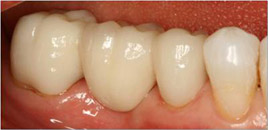 CrownsVeneers8