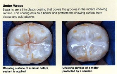 Affinity Dentistry Dr Jody Maiden Dds Fissure Sealant