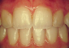 ToothColouredFillings2