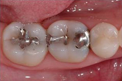 ToothColouredFillings5