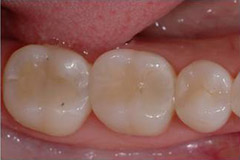 ToothColouredFillings6